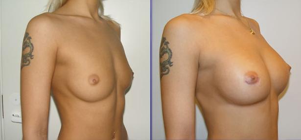 Все о пластической операции увеличение груди (маммопластика). . Статьи, фо